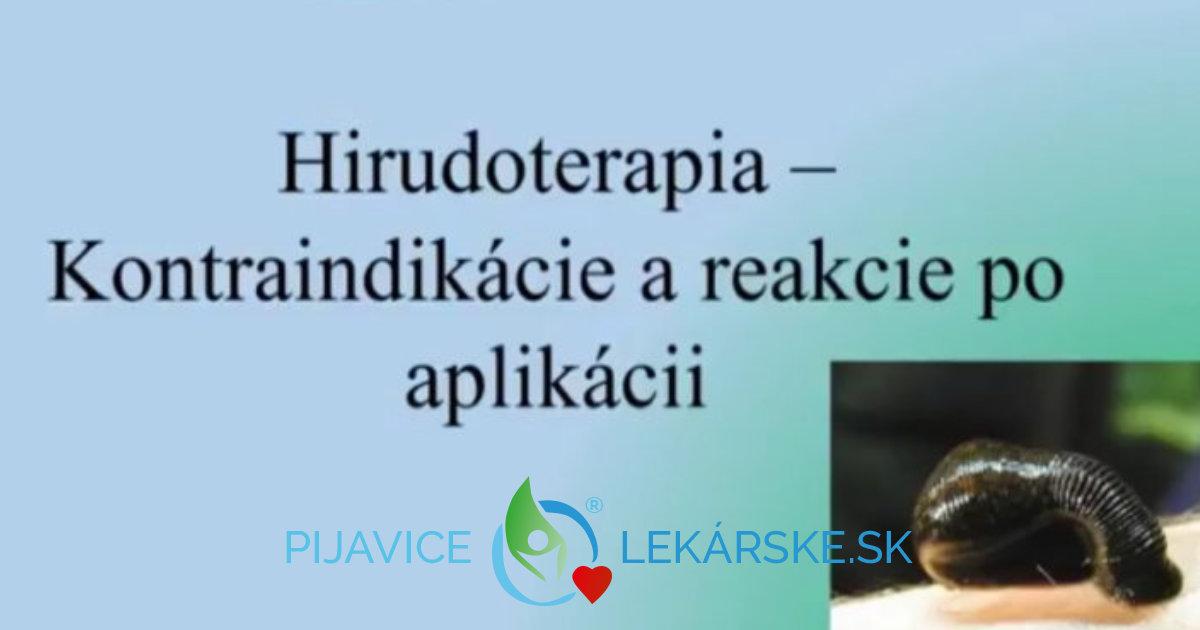 Kontraindikácie sú v hirudoterapii kľúčovou otázkou
