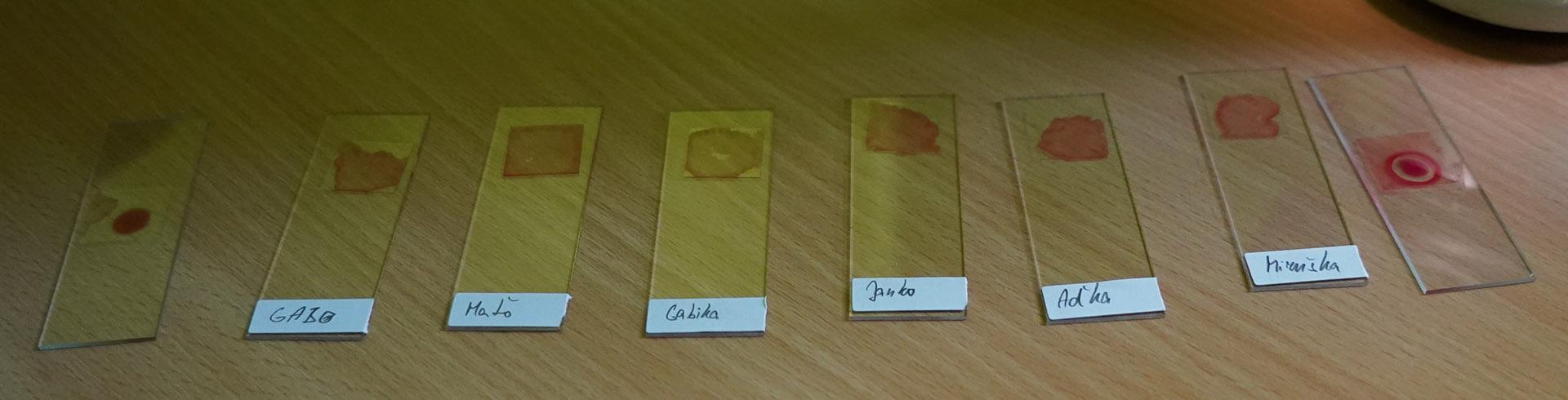 vzorky-krvi spolu