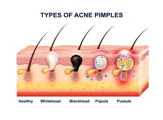typy akné na koži