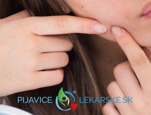 Hirudoterapia a akné