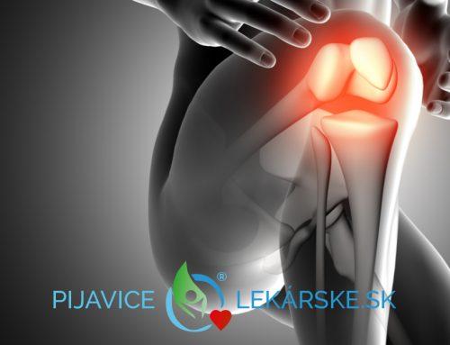 Artritída a pijavica lekárska