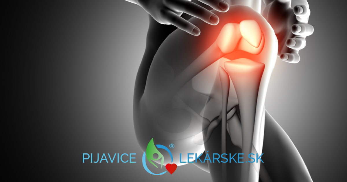 Artritída a bolesť