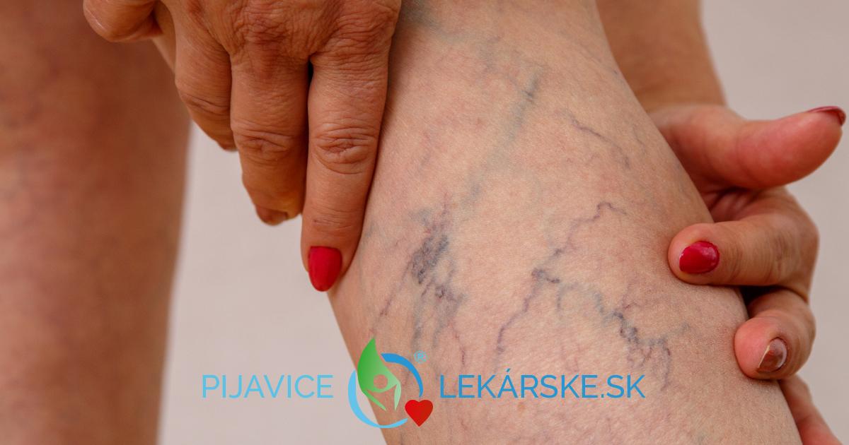 Krčové žily, varixy