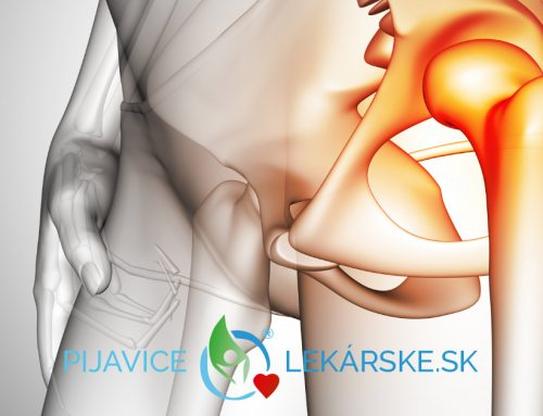 Artróza a pijavica lekárska
